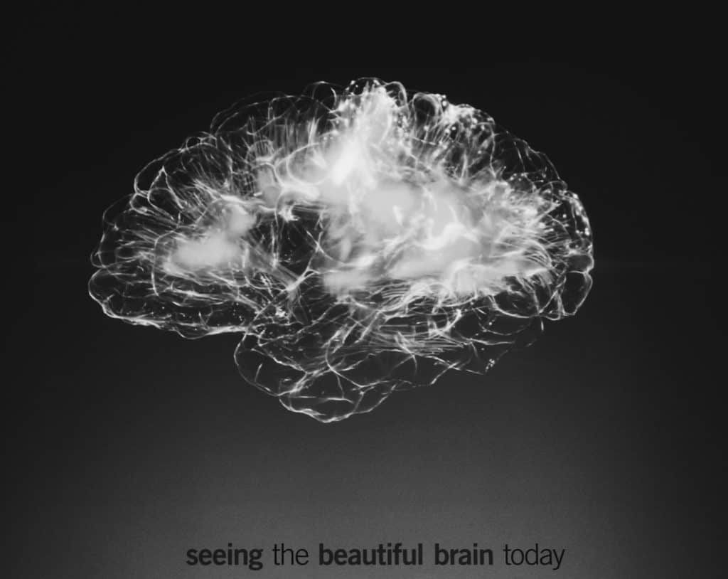 "image of a brain with text reading ""seeing the beautiful brain today"" underneath"