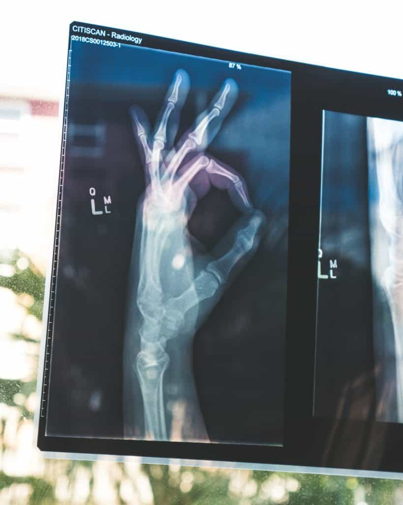 x-ray of a hand signaling 'ok'